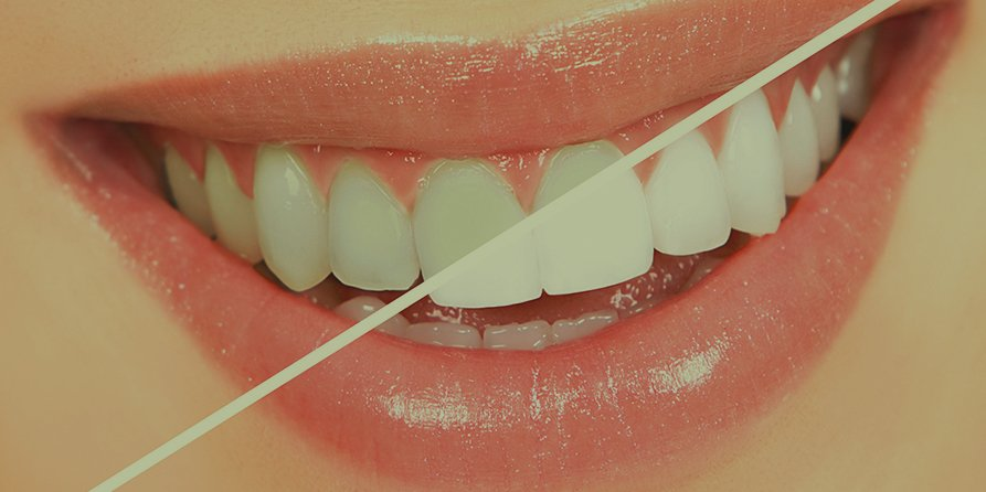 teeth whitening that is safe and instant - walk out with whiter teeth